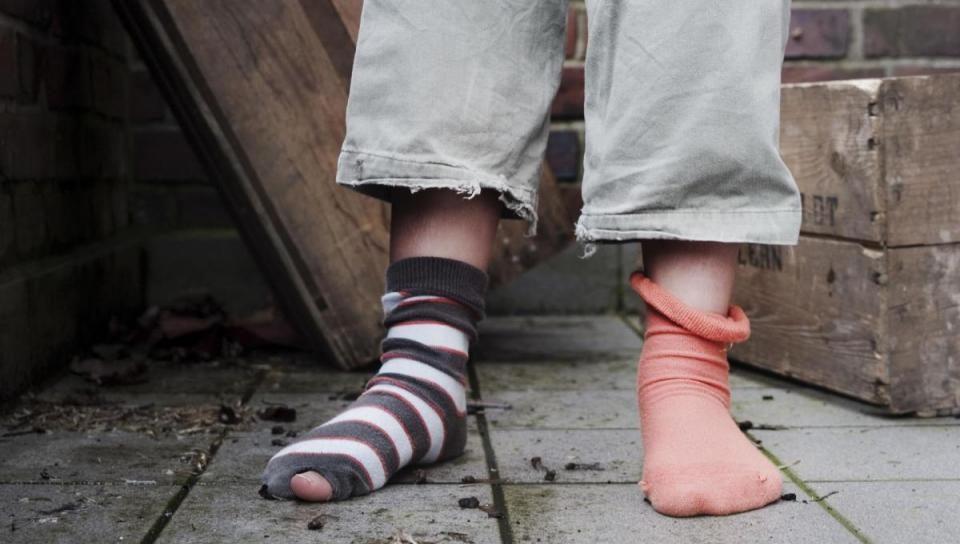 Beine eines Kindes mit unterschiedlichen Socken